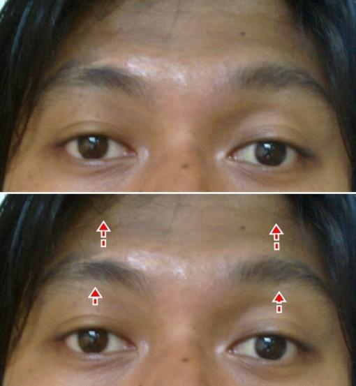 Mata Terbuka Lebar